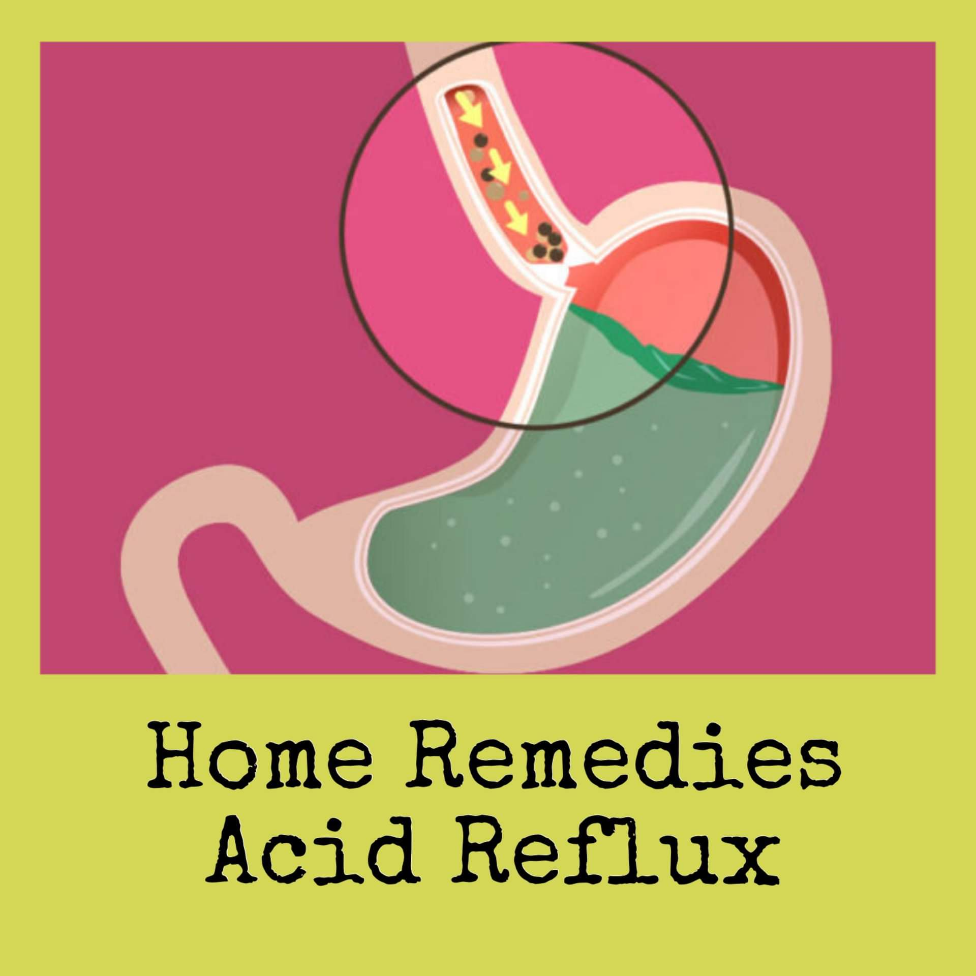 Home Remedies Acid Reflux – Live to Give